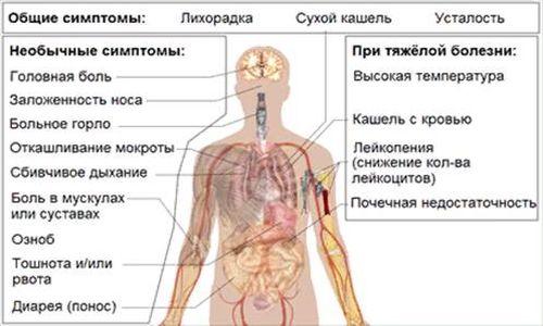ковид 3