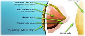 Бактерии в бляшке зубного налета