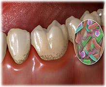 На поверхности зубов скапливается налет