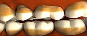Потемнение на эмали зуба